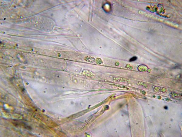 Foto microscopio de pigmentos vacuolares en el interior de las hifas